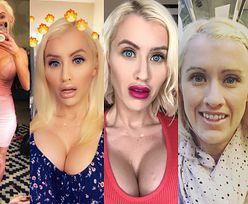 """34-letnia kobieta wygrała walkę z rakiem i została kolejną """"żywą Barbie""""... (ZDJĘCIA)"""