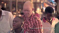 Polowanie na albinosów w Tanzanii