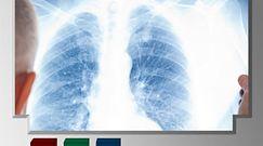 Szczepionka pomoże w walce z rakiem płuc? [Pixel]
