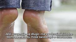 O jakich chorobach mogą świadczyć opuchnięte stopy?