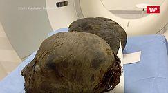 Przebadali mumie sprzed 3 tysięcy lat