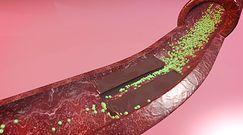 Napój udrażniający tętnice