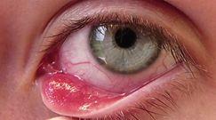 Zespół suchego oka - przyczyny