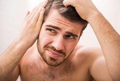 Rodzaje łysienia u mężczyzn - łysienie androgenowe, plackowate i inne