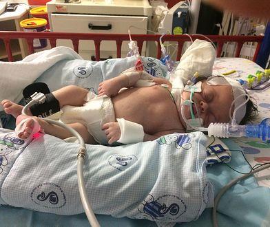Dziewczynka jest głucha, ślepa, ma zdeformowaną czaszkę, przekręcony kręgosłup i nie jest w stanie samodzielnie oddychać