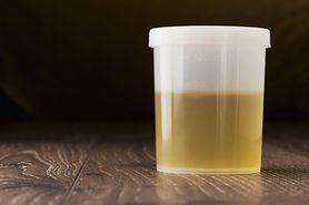 Białko w moczu (białkomocz) - przyczyny, badania, wyniki
