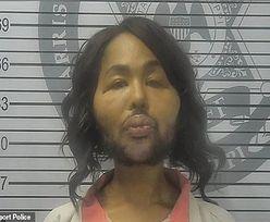 Ukradła pieniądze i poddała się operacji plastycznej. Ledwie ją poznali