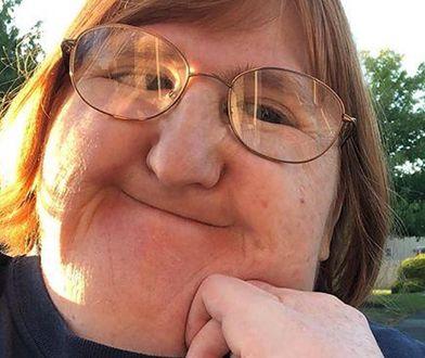 Melissa Blake walczy z dyskryminacją w sieci