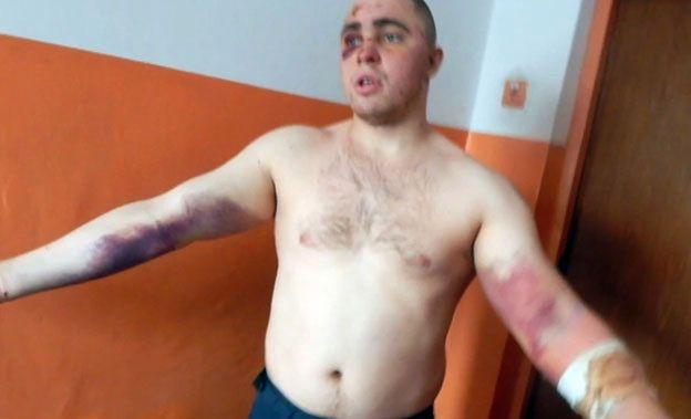 """Były więzień kolonii karnej na Ukrainie oskarża strażników o tortury. """"Typowa bójka na powitanie"""""""