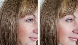 Zabiegi odmładzające na twarz. Najpopularniejsze zabiegi odmładzające dla skóry dojrzałej