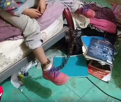 Meksyk. Nie wiadomo jak długo pięciolatka żyła w skandalicznych warunkach