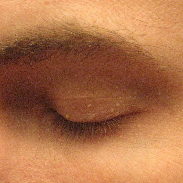 Prosaki to małe grudki o wielkości 1-2 mm. Często występują w okolicach oczu