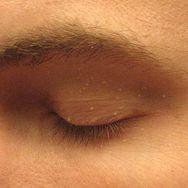 Małe grudki na twarzy. Wyjaśniamy, czym są prosaki i jak się ich pozbyć