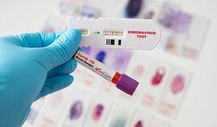 Test na obecność koronawirusa - zdjęcie poglądowe