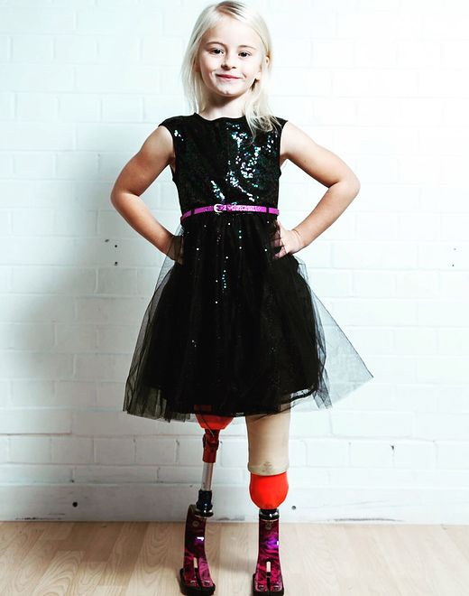SL-241332-LITTLE GIRL WITH NO LEGS AND BIG DREAMS - COLLECTS