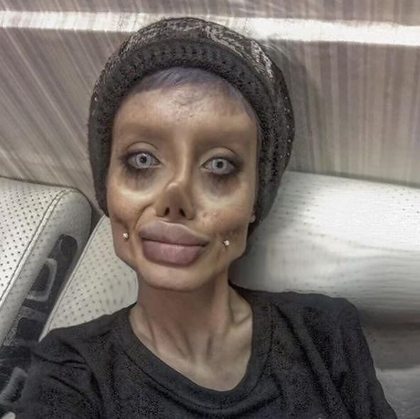 Wcale nie jest ofiarą nieudanych operacji. Fanka Angeliny Jolie pokazała, jak wygląda naprawdę
