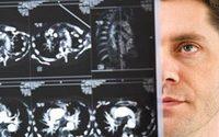 Mukowiscydoza - przyczyny i rozpoznanie