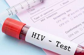HIV. Od trądu do choroby przewlekłej, czyli dlaczego już go się nie boimy?