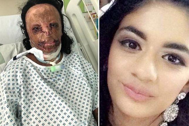 Nastolatka użyła szamponu na wszy. W wyniku wypadku doznała oparzeń trzeciego stopnia