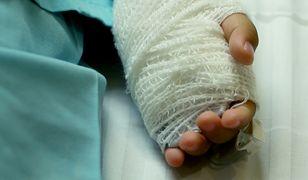 Chłopiec doznał oparzenia termicznego drugiego stopnia nadgarstka i dłoni