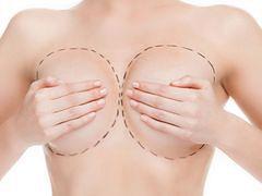 Jakie powikłania po zabiegu powiększenia biustu?