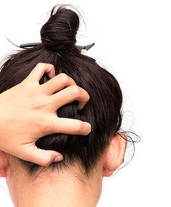 Swędząca skóra głowy – przyczyny i sposoby walki z dolegliwością