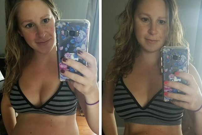 Mama z Instagrama i jej prawda o pociążowym brzuchu