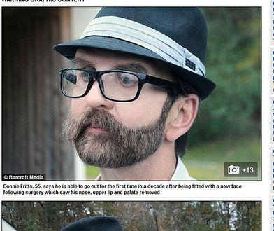 Pocałował żonę po raz pierwszy po 10 latach. Zmagał się z rakiem, przeszedł rekonstrukcję twarzy