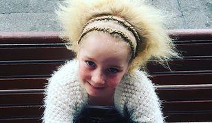 Syndrom Rozczochranych Włosów? Naprawdę jest coś takiego i ty też możesz go mieć