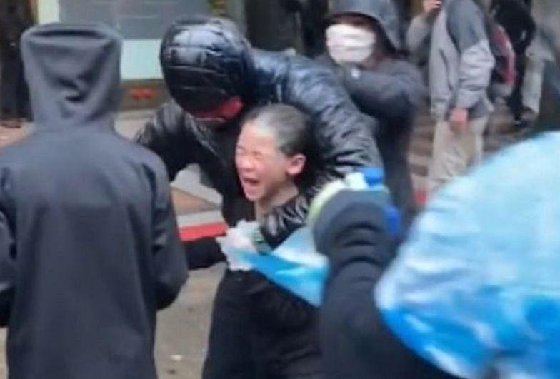 Dziewczynka została zaatakowana gazem pieprzowym.