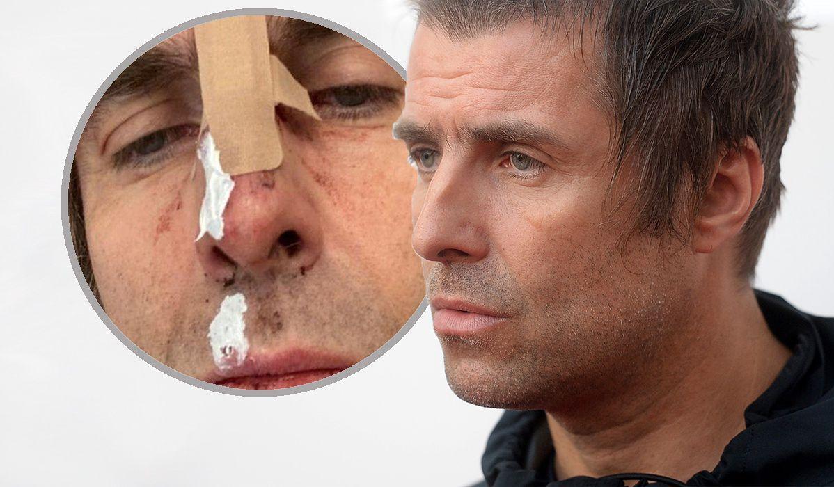 Liam Gallagher miał szczęście, że helikopter stał na ziemi.