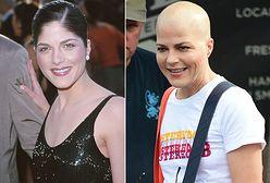 Selma Blair przez leczenie straciła włosy. Nie poddaje się chorobie