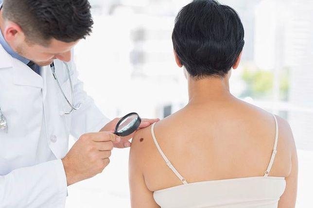 Onkolog: oparzenia słoneczne z dzieciństwa zwiększają ryzyko czerniaka