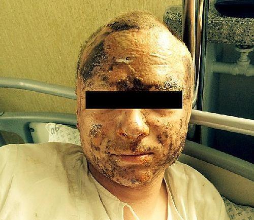 Chciał się napić wymyślnego drinka, skończył z poparzoną twarzą