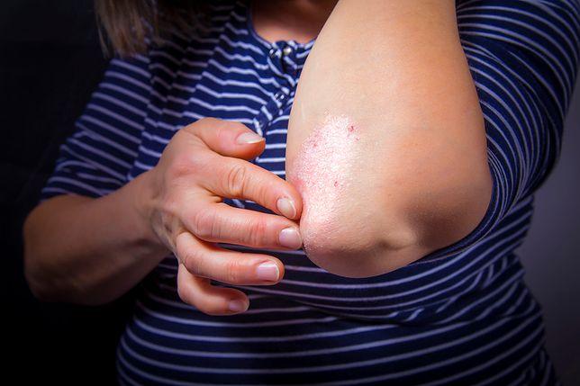 Grace Ridgway cierpi z powodu łuszczycy od urodzenia