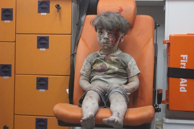 Zdjęcie tego dziecka obiegło cały świat. Wojna odbiera im życie