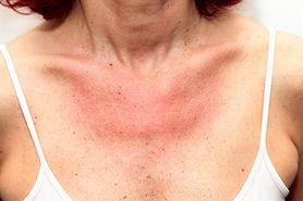 Jak rozpoznać alergię na słońce? Objawy uczulenia na słońce (fotoalergii)