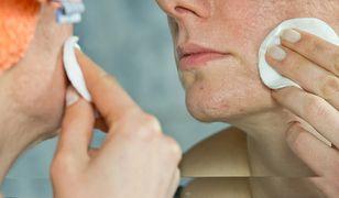 Trądzik dorosłych - zmiany skórne u osób po trzydziestce