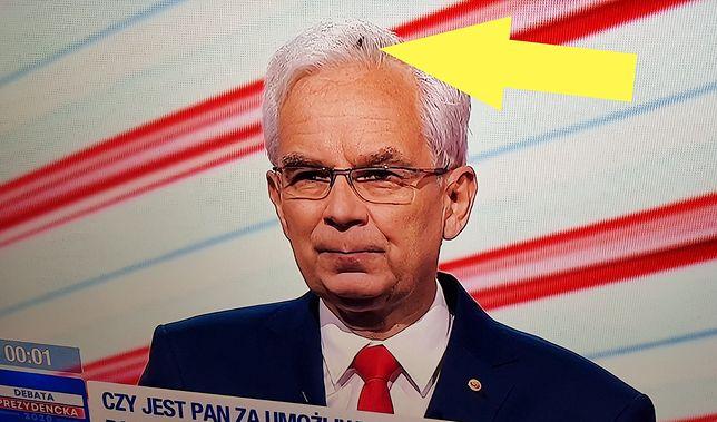Wpadka podczas debaty prezydenckiej. Na głowie kandydata usiadła...mucha