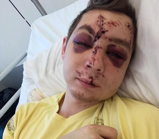 Zatrzymano kierowcę, który potrącił 22-letniego Kacpra