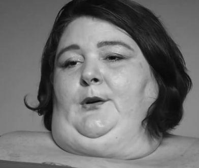 Gwiazda TV dobiła do 291 kg. Jej organizm się poddał. Zmarła w szpitalu