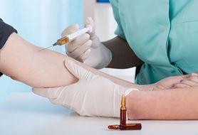 Szczepienie przeciwko kleszczowemu zapaleniu mózgu