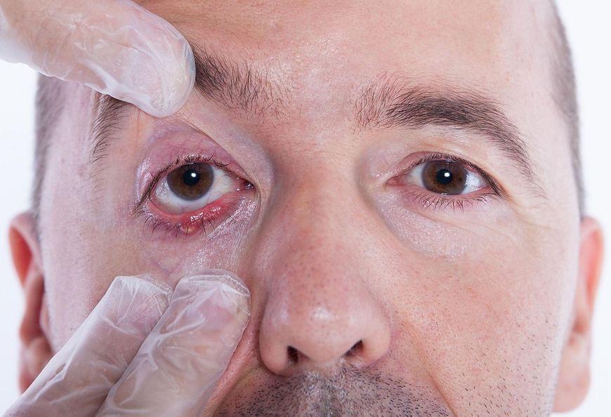 Pęcherz na oku
