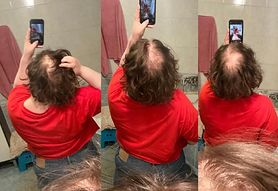 Po COVID-19 zaczęła łysieć. Ewa Mazurek opowiada o powikłaniach