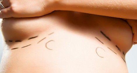 Koniec powiększania piersi nastolatkom!