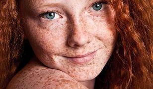Przebarwienia na twarzy. Jak je leczyć?