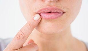 Żeby właściwie dbać o usta przez cały rok powinnyśmy regularnie je nawilżać