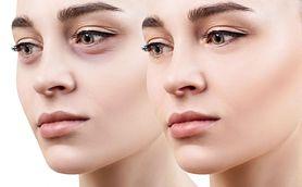 Podkrążone oczy – przyczyny, objawy i leczenie
