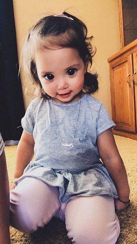 Dziewczynka ma niesamowite oczy. Sprawdź, dlaczego tak wygląda