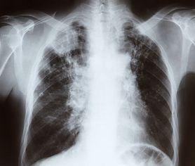 Spirometria nie boli, a ratuje życie